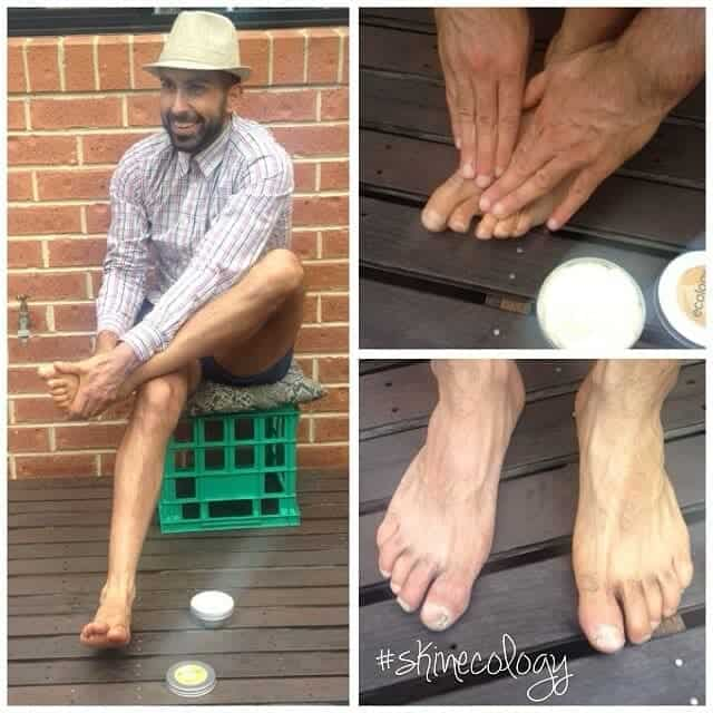Charby from The Ancestral Body, road-testing Tallow Butter on his dry, cracked feet